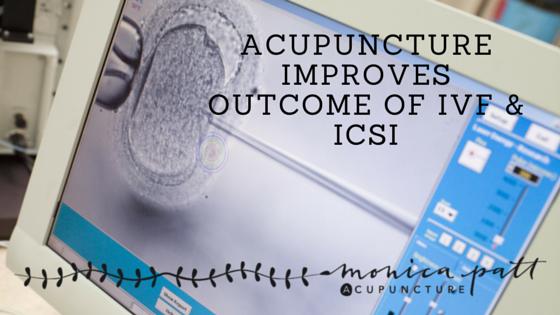 Acupuncture IVF ICSI