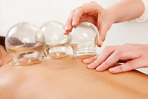 Cupping being used on a persons back